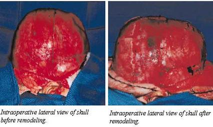brachycephaly Craniosynostosis