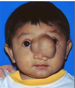 Nasal Encephalocele
