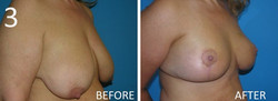 Breast Reduction 3 Larry Sargent MD