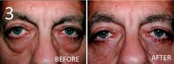 Blepharoplasty 3 Larry A Sargent MD