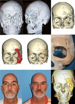 3-D Modeling of Facial Trauma