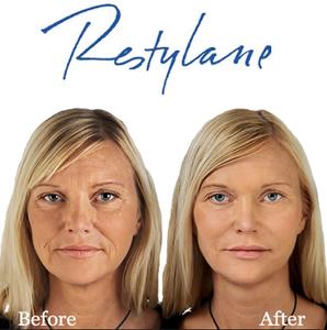 Med Spa Salt Lake City Restylane Before and After