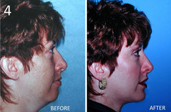 Facelift 4 Larry Sargent MD