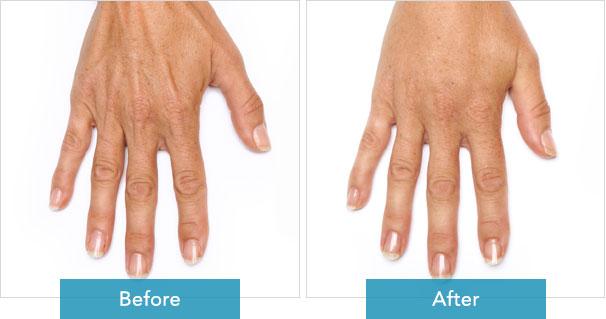 Radiesse Hand Rejuvenation 1