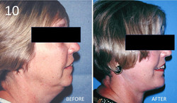 Facelift 10 Larry Sargent MD