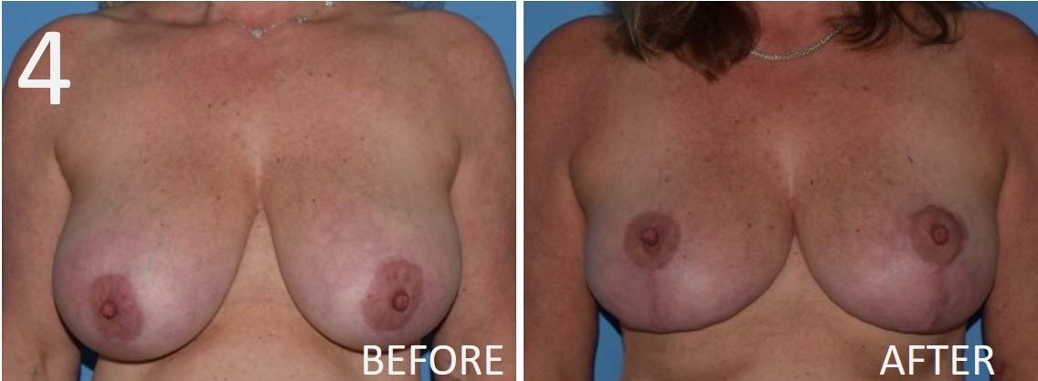 Breast Reduction 4 Larry Sargent MD