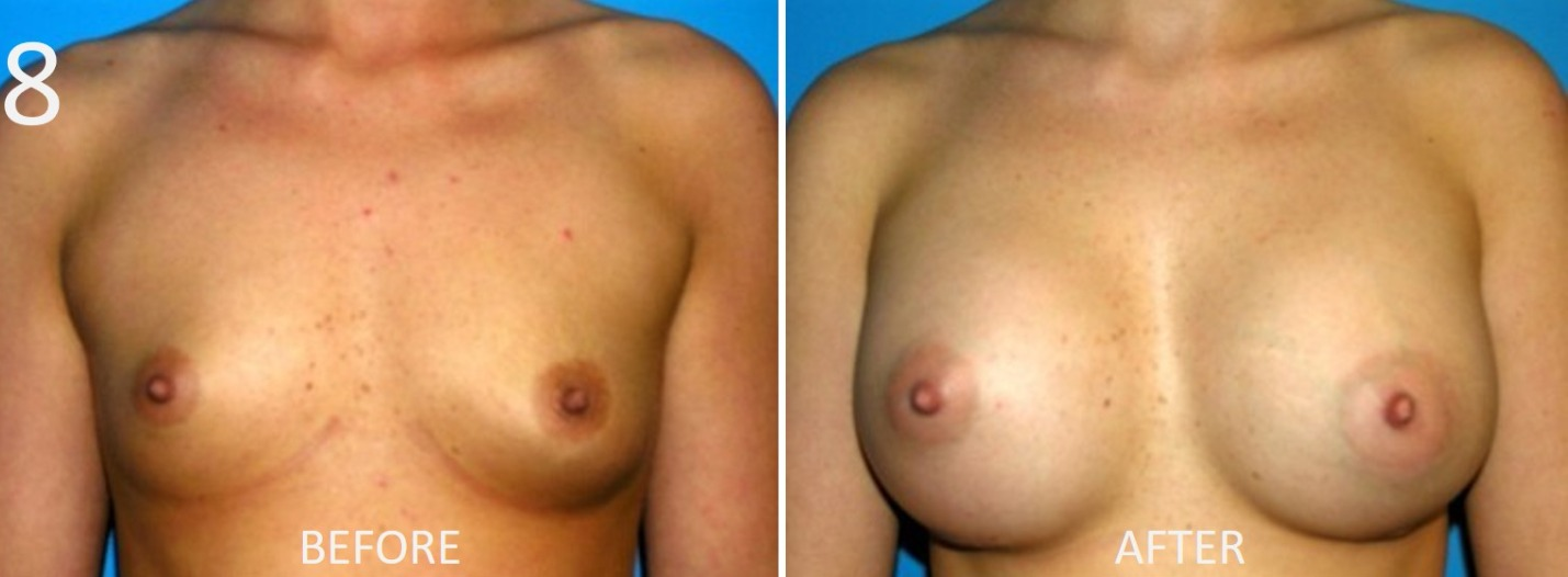 Breast Augmentation Larry Sargent 8