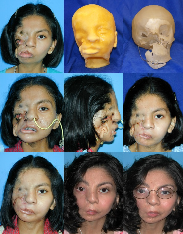 3-D Modeling of Facial Cleft