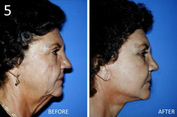 Facelift 5 Larry Sargent MD
