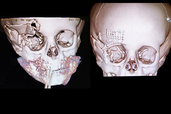 Orbital Fracture