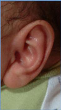 Ear Well Correction