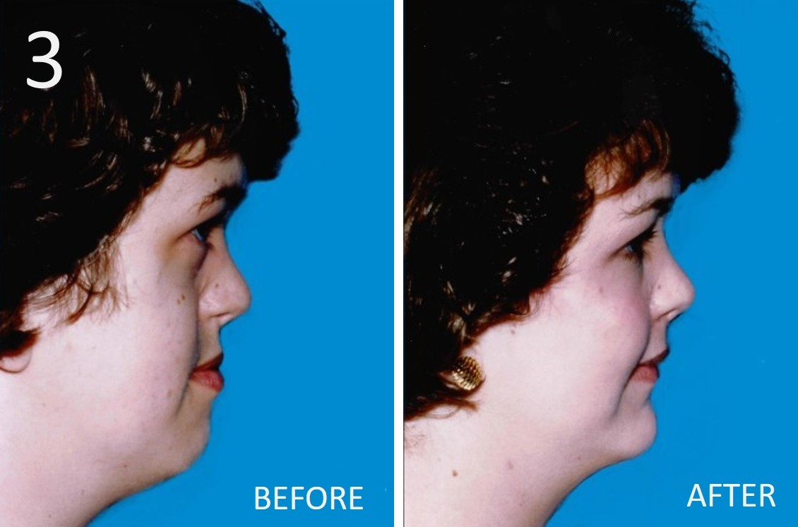 Cheek Enhancement 3 Sargent MD FACS