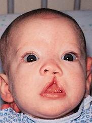 Unilateral Cleft Lip Repair