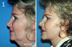 Facelift 1 Larry Sargent MD