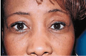 Exophthalmos