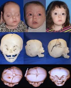 3-D Coronal Craniosynostosis