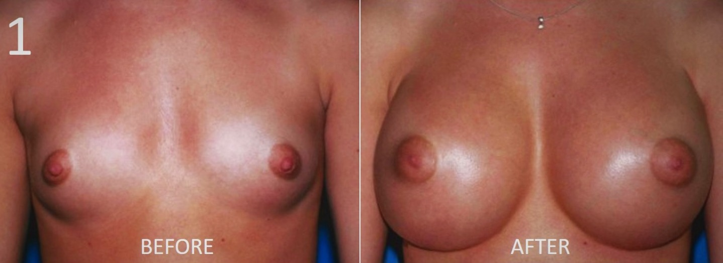 Breast Augmentation Larry Sargent 1