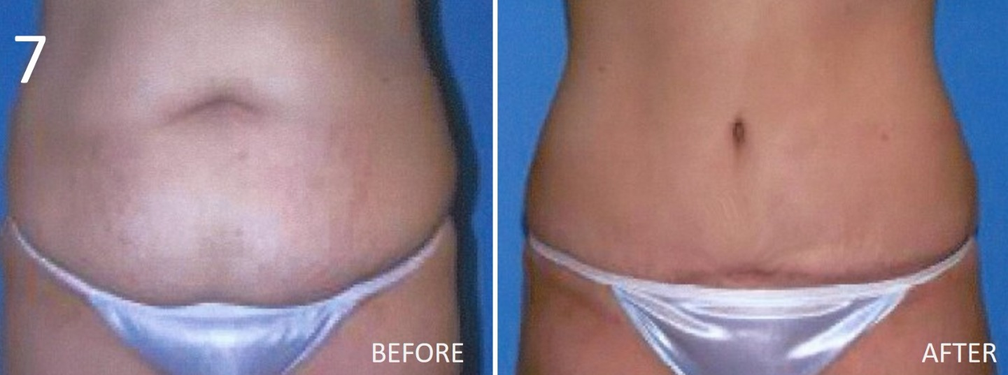Abdominoplasty 7 Larry Sargent MD