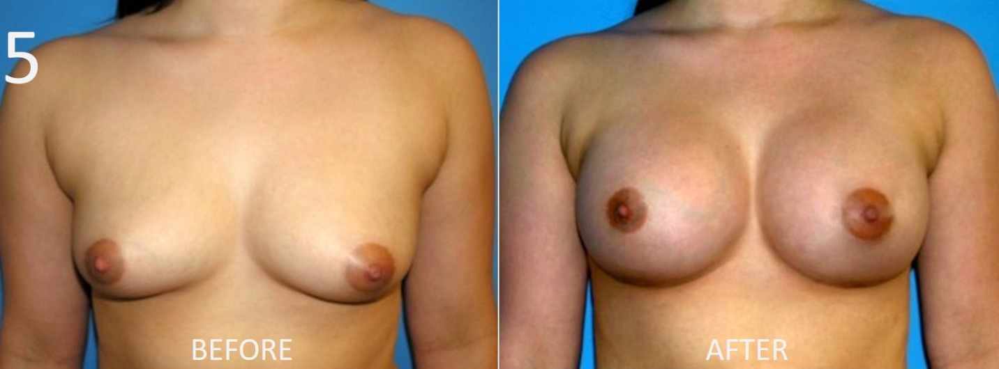 Breast Augmentation Larry Sargent 5
