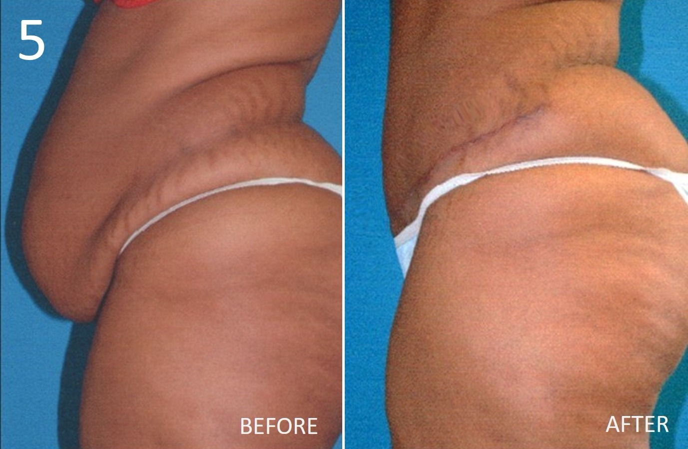 Abdominoplasty 5 Larry Sargent MD