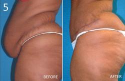 Abdominoplasty 5 Larry Sargent MD
