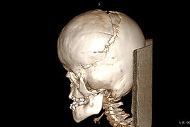3-Dimensional Model of Skull