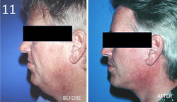 Facelift 11 Larry Sargent MD