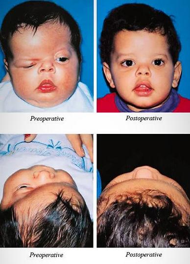 Unilateral Coronal  Craniosynostosis