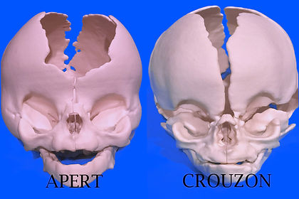 Apert and Crouzon Syndromes
