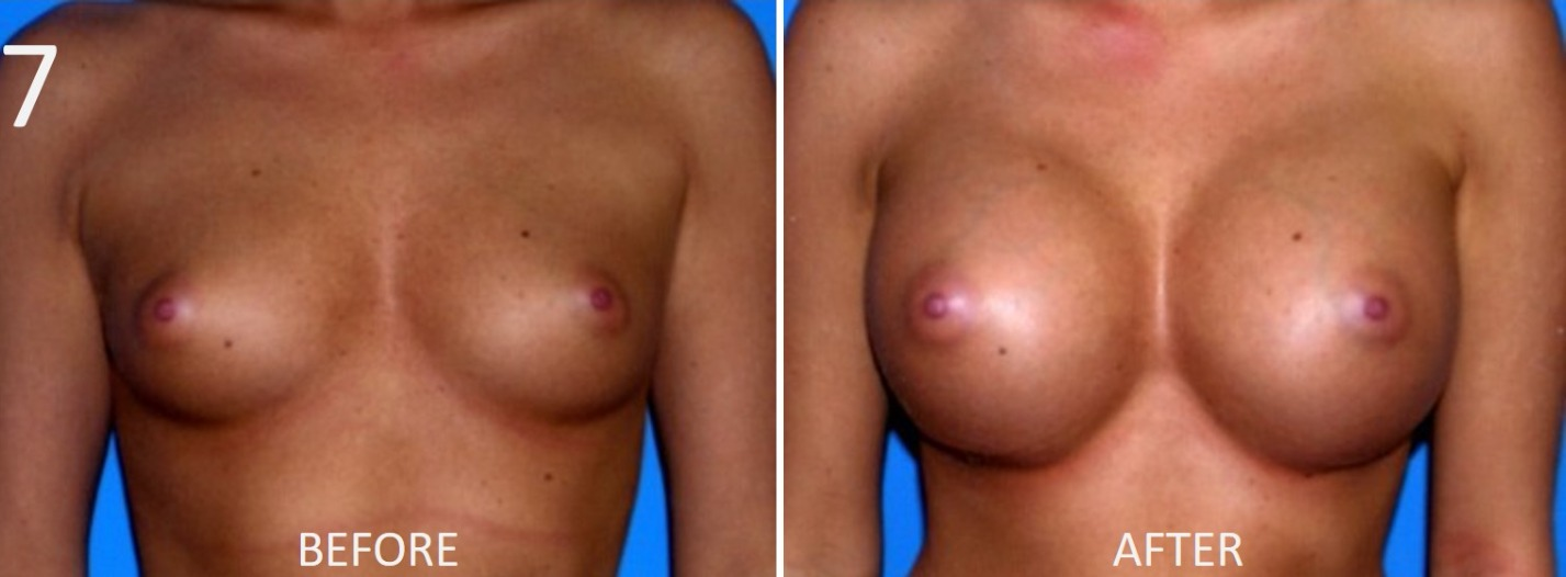 Breast Augmentation Larry Sargent 7