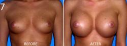 Breast Augmentation Larry Sargent 7
