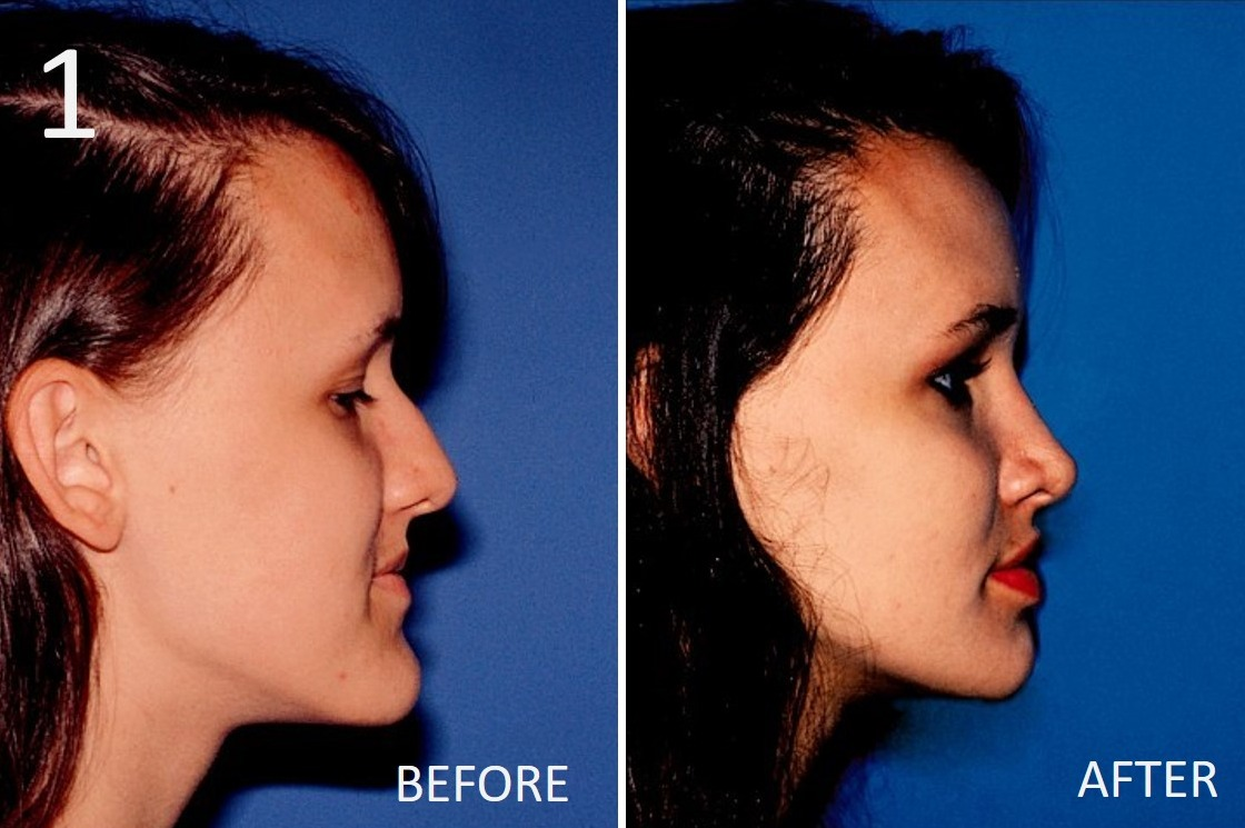 Cheek Enhancement 1 Sargent MD FACS