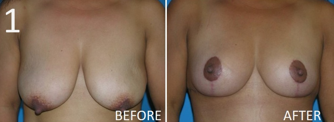 Breast Reduction 1 Larry Sargent MD