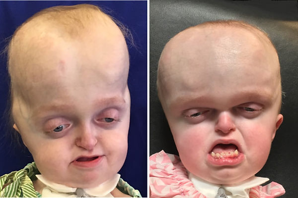 Pfeiffer Syndrome Pre and Post Operative