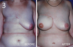 Breast Reconstruction 3 Sargent MD
