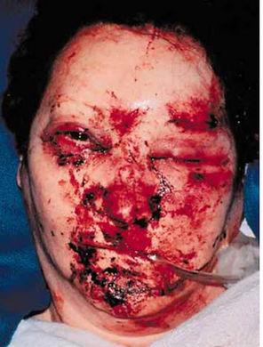 Mandibular Panfacial Fractures