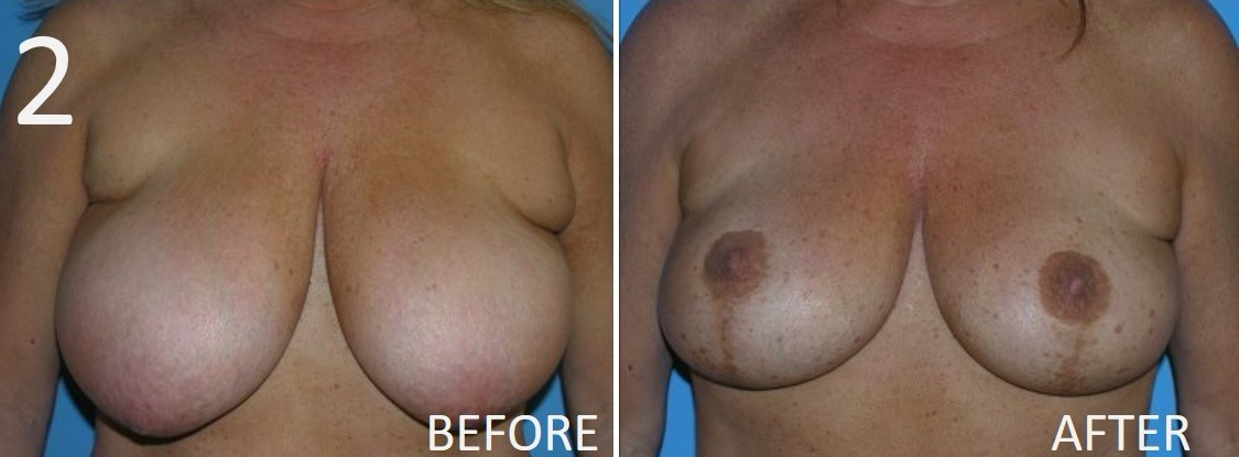 Breast Reduction 2 Larry Sargent MD