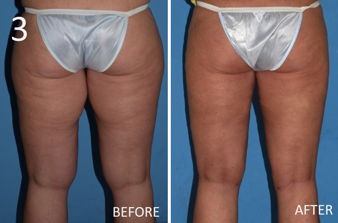 Liposuction 3 Larry A Sargent MD