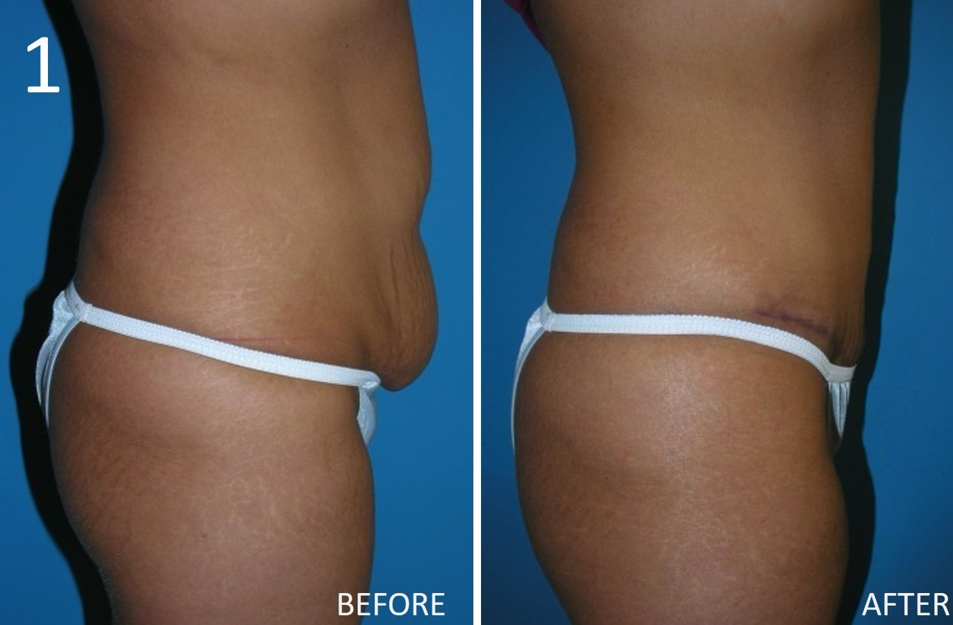 Abdominoplasty 1 Larry Sargent MD