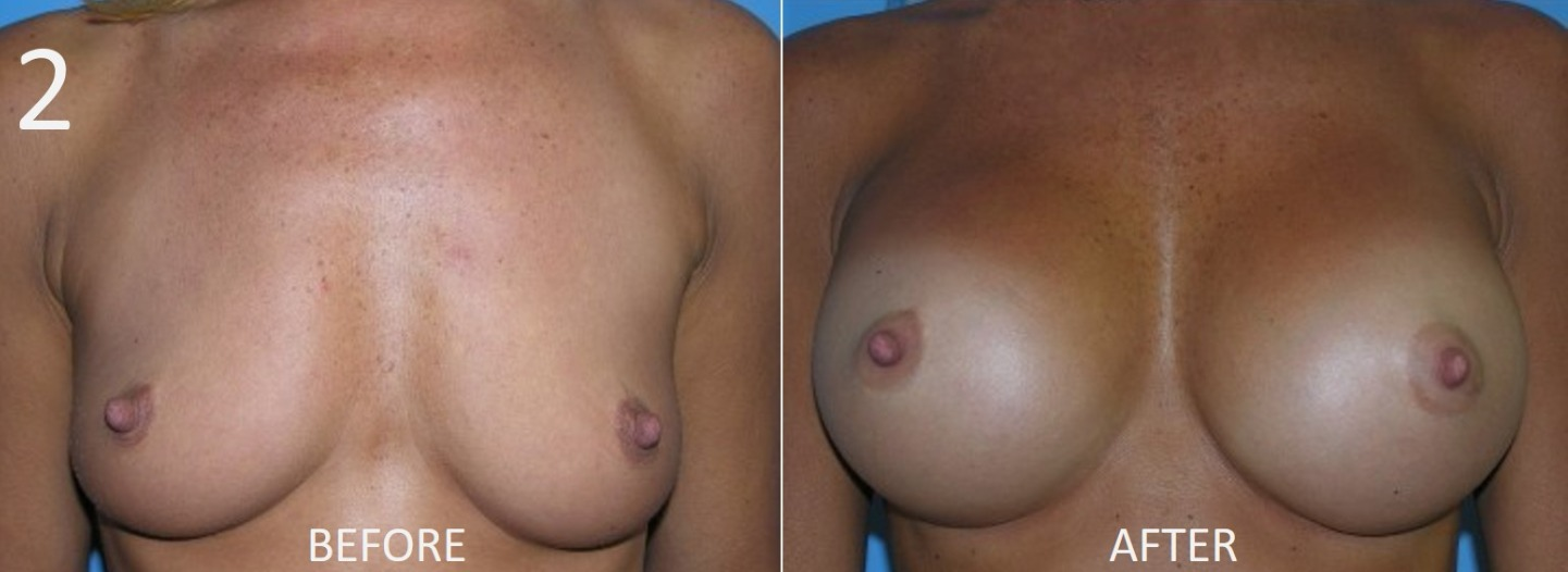 Breast Augmentation Larry Sargent 2