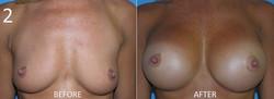 Breast Augmentation Larry Sargent 2