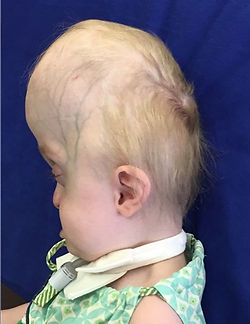 Pfeiffer Syndrome