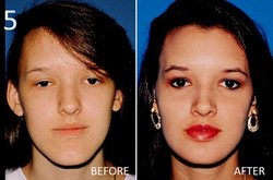Chin Augmentation 5