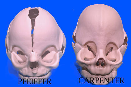 Pfeiffer and Carpenter Syndromes