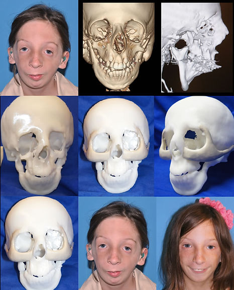 3-D Modeling Treacher Collins Syndrome