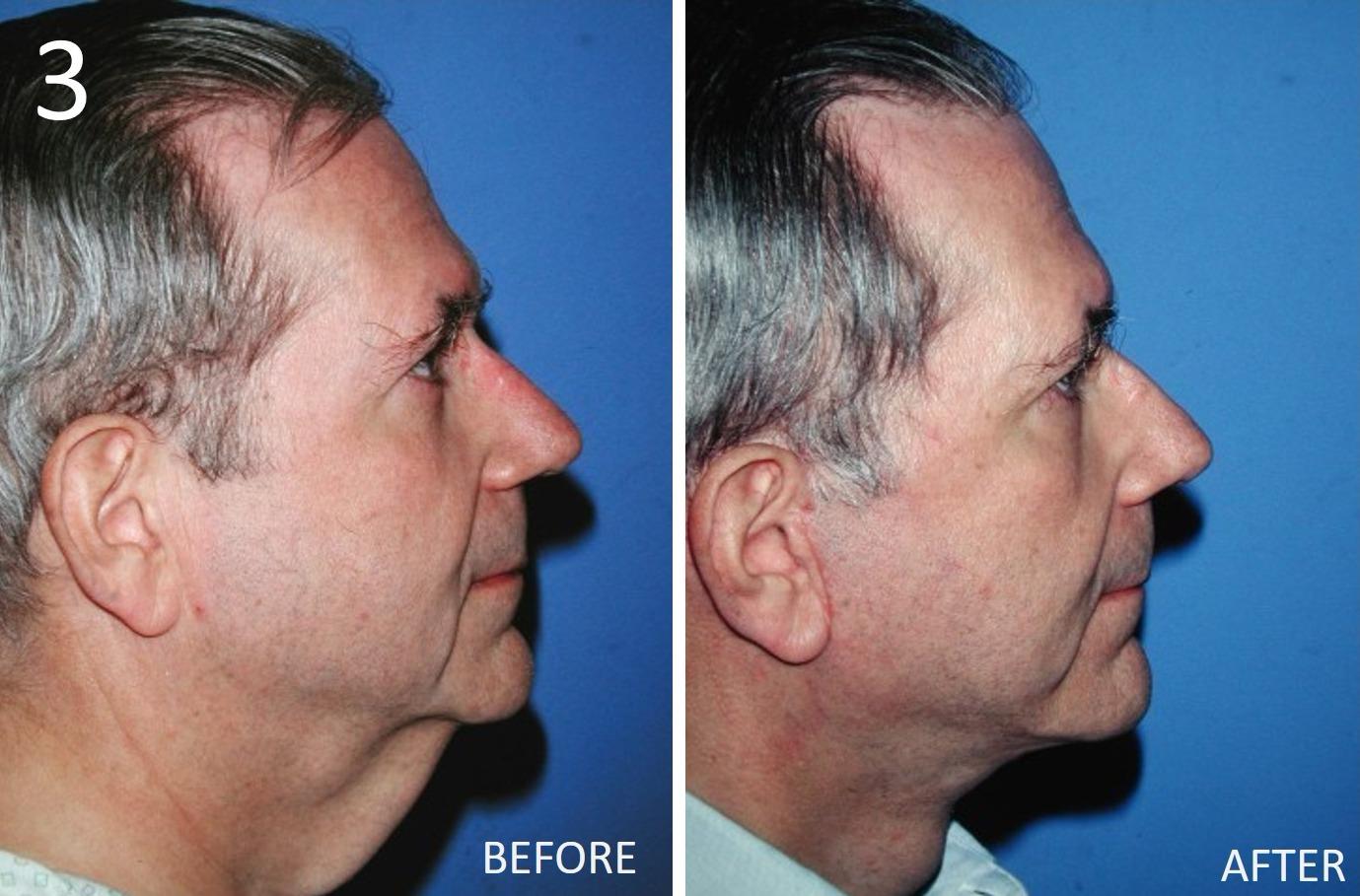 Facelift 3 Larry Sargent MD