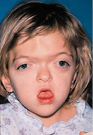 Apert Syndrome Preoperative