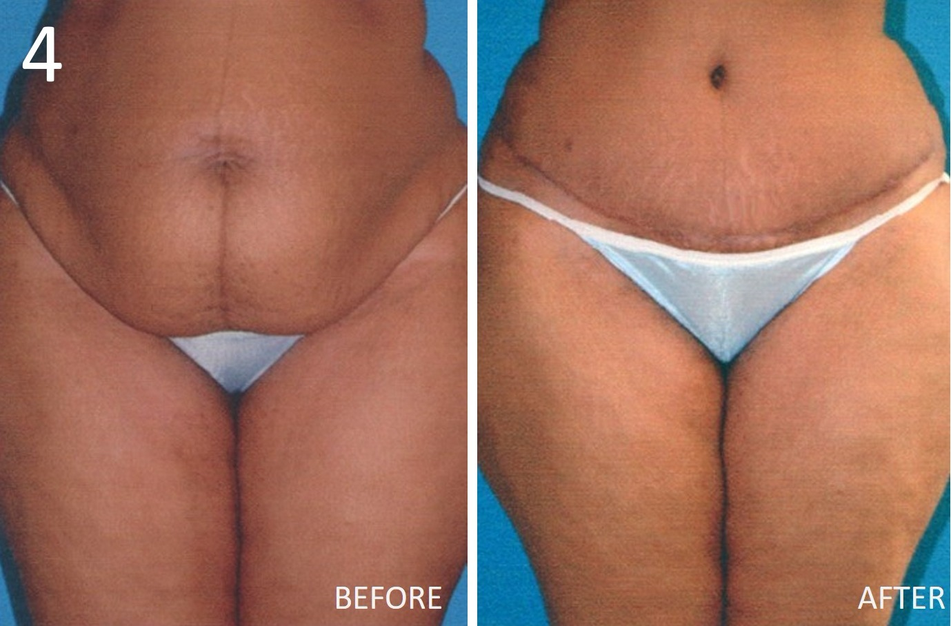 Abdominoplasty 4 Larry Sargent MD