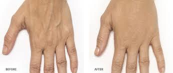 Radiesse Hand Rejuvenation 4