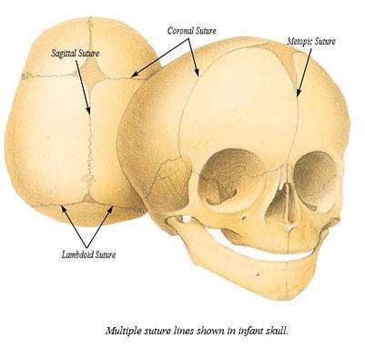 Suture Lines Craniosynostosis Salt Lake City Utah